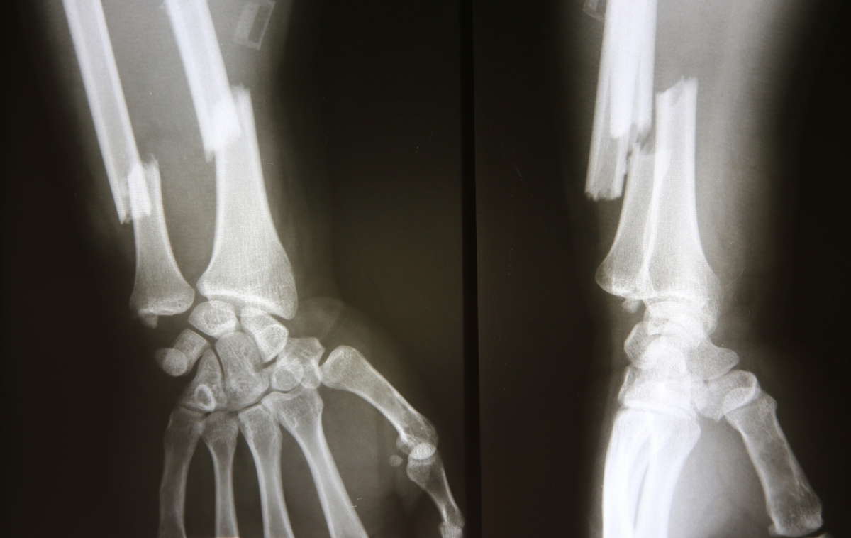 Broken Bones From Car Accident Can Be Worse Than You May Imagine